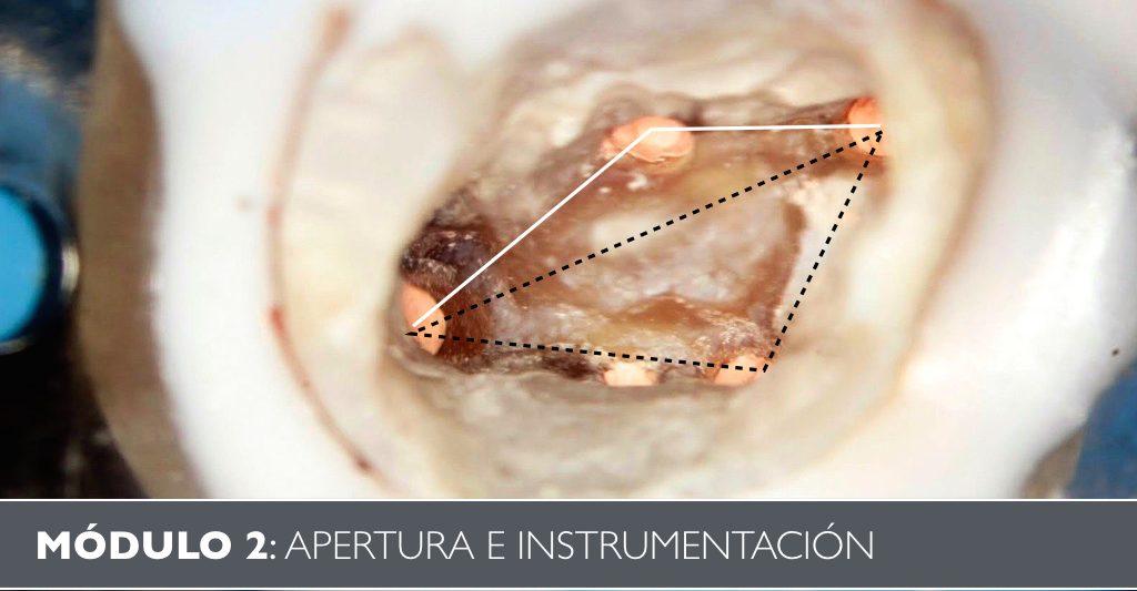 Portada Instrumentación Endodoncia