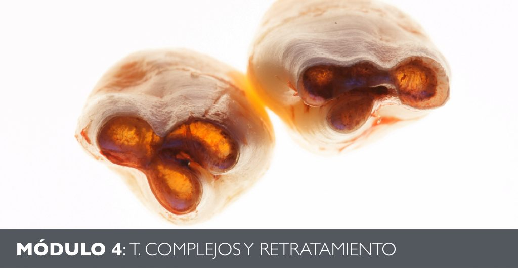 Portada Retratamiento Endodoncia